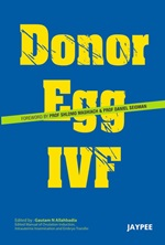 Donor Egg IVF