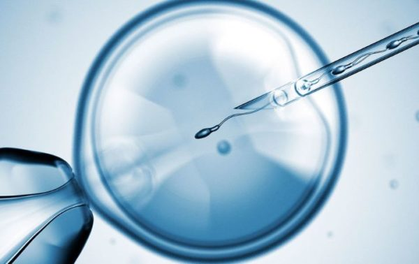 Assisted-Reproductive-Technologies